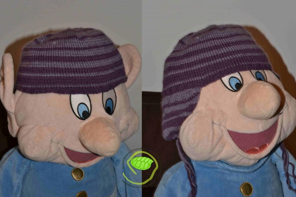 bonnet avant et après transformation